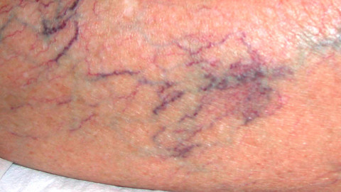 La terapia sclerosante